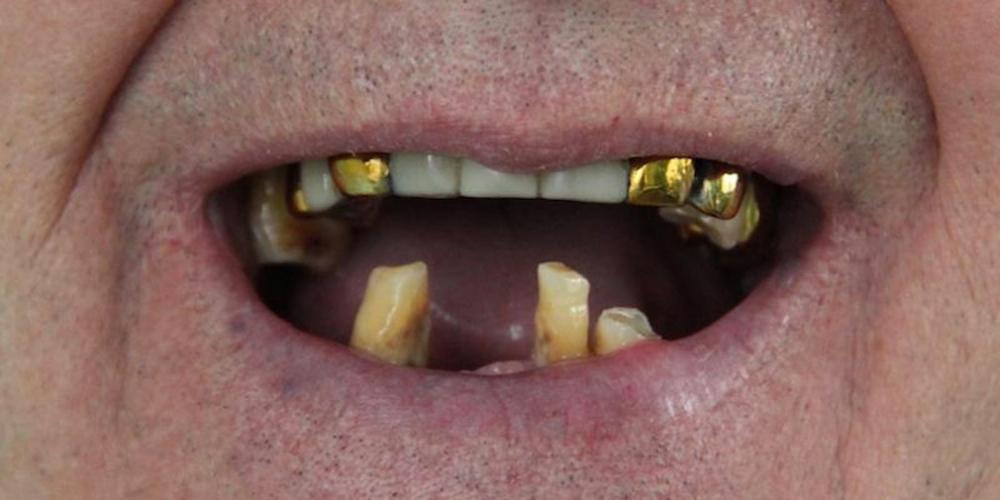Одномоментная постановка 4 имплантатов, протезирование нижней челюсти