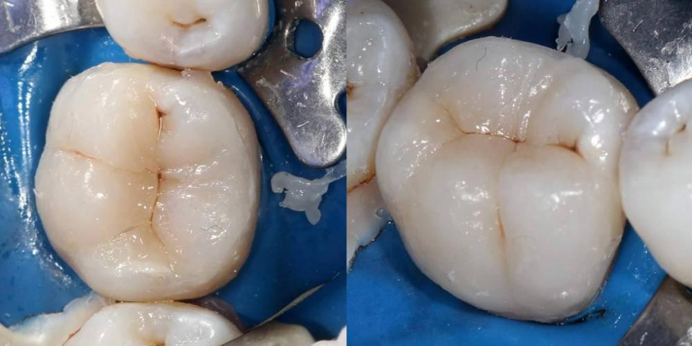 Восстановление щечной стенки материалом Filtek Ultimate оттенка Enamel W и готовый вид реставрации. Эндодонтическое лечение и реставрация зуба