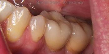 Имплантация 2 имплантатов и протезирование зубов под ключ фото после лечения