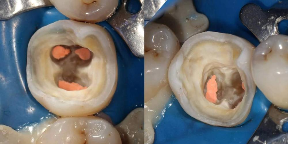 Произведена подготовка каналов к обтурации. Произведена механическая подготовка твердых тканей зуба к реставрации. Эндодонтическое лечение и реставрация зуба