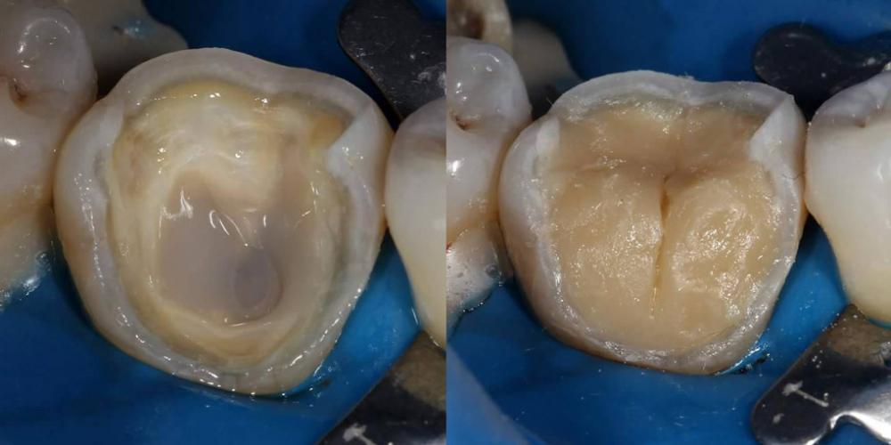 Восстановление основного обьема дентина материалом Filtek Ultimate оттенка A4 dentin  в технике послойного нанесения. Эндодонтическое лечение и реставрация зуба