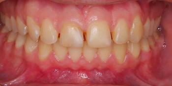 Преобразование улыбки керамическими винирами фото до лечения