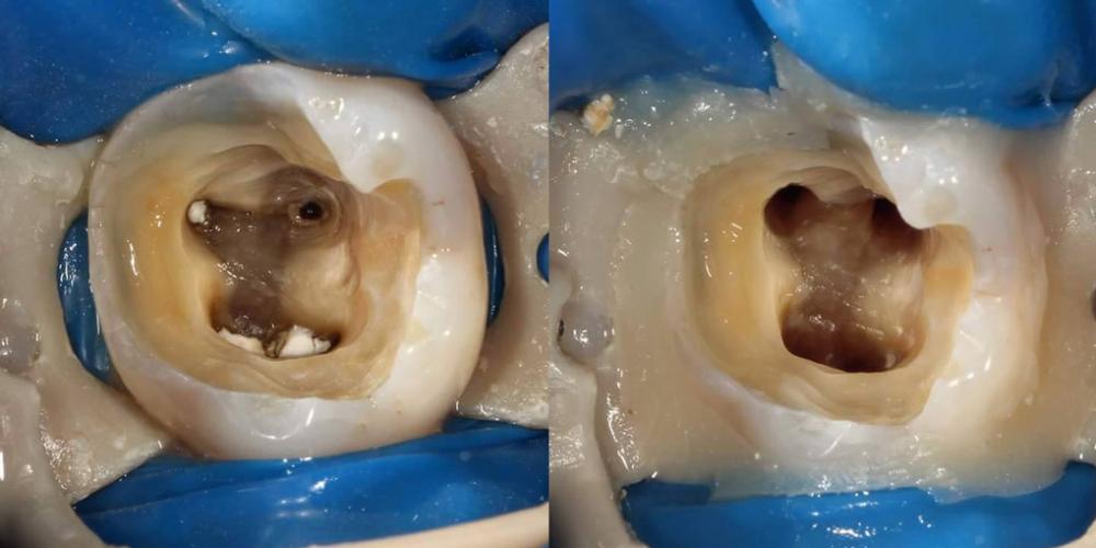 Произведено удаление старой пломбы, удалены инфицированные ткани. Зуб подготовлен к эндодонтическому лечению. Эндодонтическое лечение и реставрация зуба