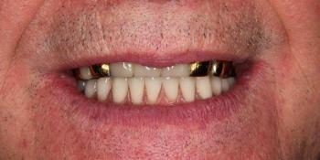 Одномоментная постановка 4 имплантатов, протезирование нижней челюсти фото после лечения
