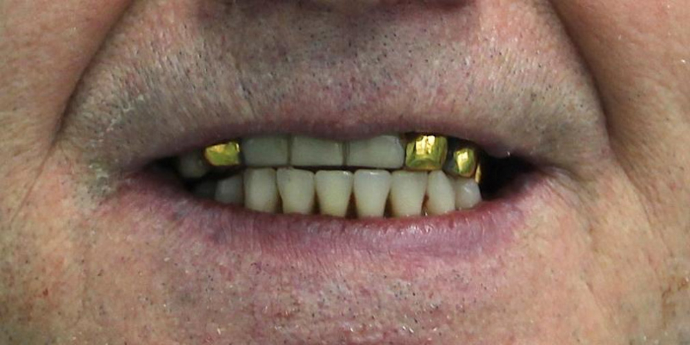 4. Частично была сделана пластика мягких тканей. Ушивание. 5. Зафиксирован сразу же Пластмассовый протез 1го порядка на временные аббатменты, шахты закрыты фум лентой и залиты композитной пластмассой. Одномоментная постановка 4 имплантатов, протезирование нижней челюсти