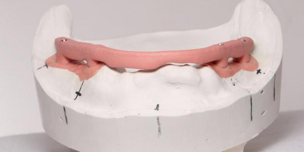 6. Зубной техник изготовил Пластмассовый несьемный протез винтовой фиксации 2го порядка с цельно фрезерованным каркасом. Одномоментная постановка 4 имплантатов, протезирование нижней челюсти