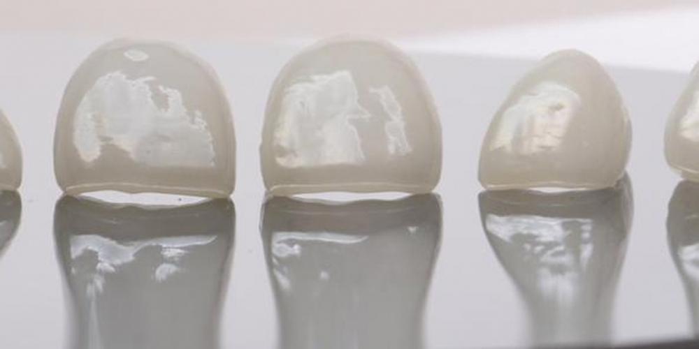 Преобразование улыбки керамическими винирами