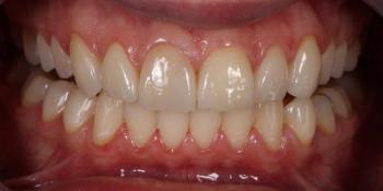Преобразование улыбки керамическими винирами фото после лечения
